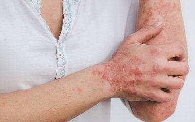 Psorijaza – Kako živjeti s jednom od najčešćih kožnih bolesti?