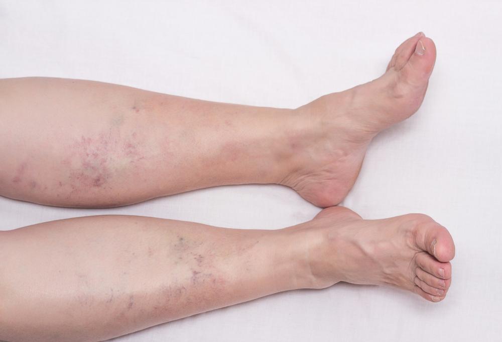 Kronične rane i cirkulacijski problemi