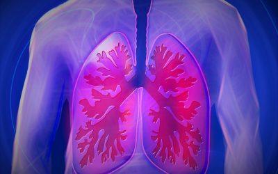 Kronična opstruktivna plućna bolest (KOPB): Ubojica iz sjene
